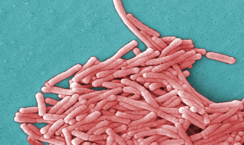 Legionella_pneumophila_(SEM) - Copy